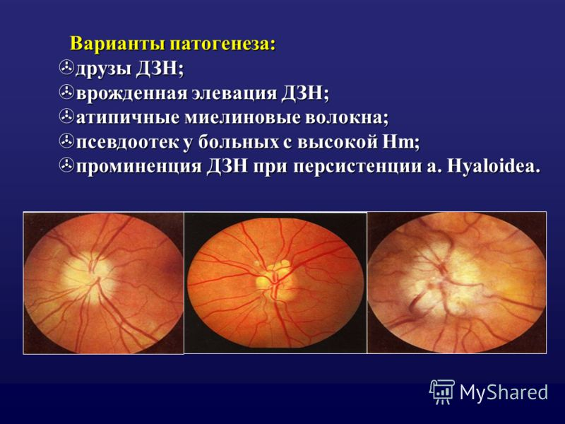 Варианты патогенеза: >друзы ДЗН; >врожденная элевация ДЗН; >атипичные миелиновые волокна; >псевдоотек у больных с высокой Hm; >проминенция ДЗН при персистенции a. Hyaloidea.