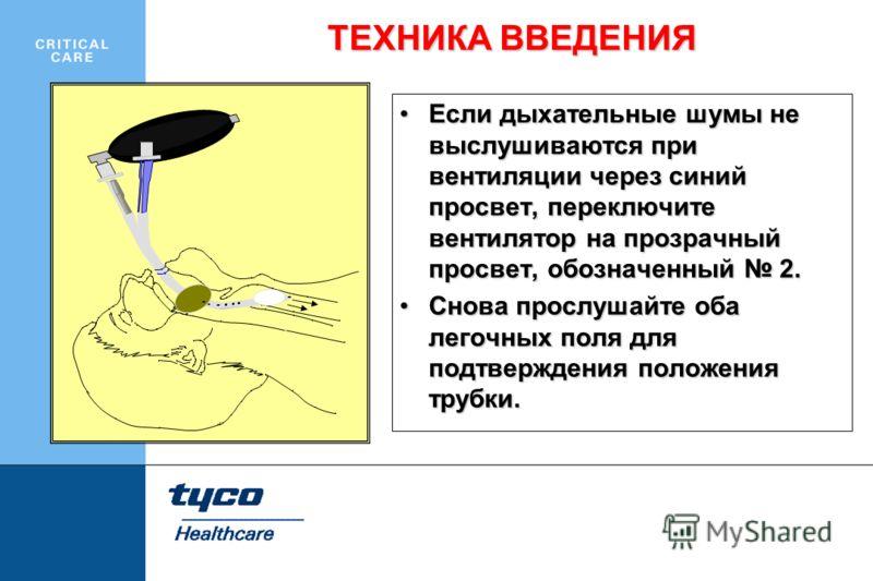 Если дыхательные шумы не выслушиваются при вентиляции через синий просвет, переключите вентилятор на прозрачный просвет, обозначенный 2.Если дыхательные шумы не выслушиваются при вентиляции через синий просвет, переключите вентилятор на прозрачный пр