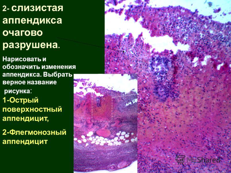 2- слизистая аппендикса очагово разрушена. Нарисовать и обозначить изменения аппендикса. Выбрать верное название рисунка : 1-Острый поверхностный аппендицит, 2-Флегмонозный аппендицит