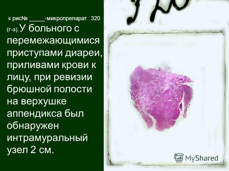 к рис _____-микропрепарат 320 (г-э). У больного с перемежающимися приступами диареи, приливами крови к лицу, при ревизии брюшной полости на верхушке аппендикса был обнаружен интрамуральный узел 2 см.