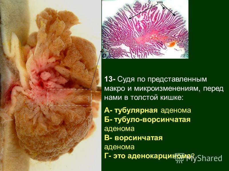 13- Судя по представленным макро и микроизменениям, перед нами в толстой кишке: А- тубулярная аденома Б- тубуло-ворсинчатая аденома В- ворсинчатая аденома Г- это аденокарцинома ?