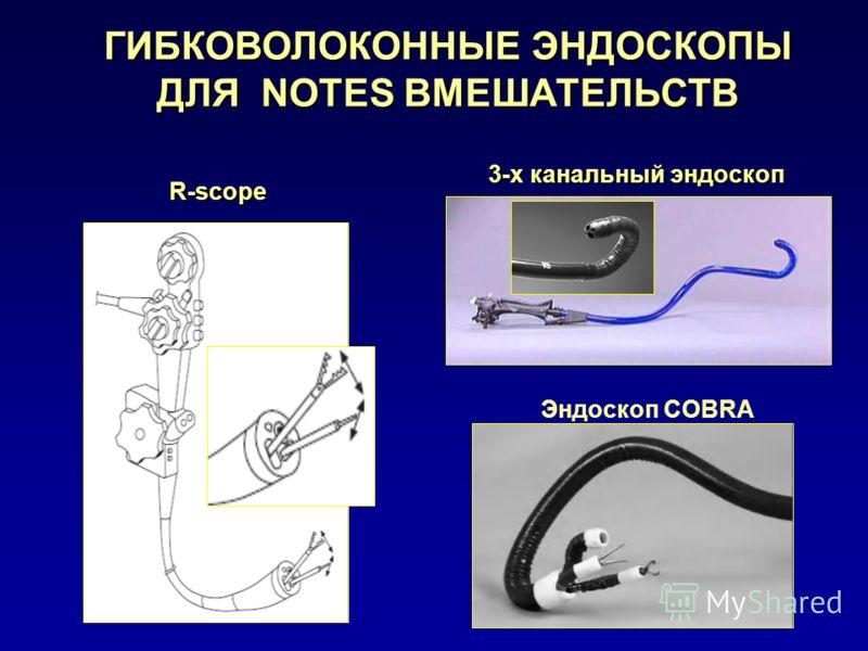 3-х канальный эндоскоп ГИБКОВОЛОКОННЫЕ ЭНДОСКОПЫ ДЛЯ NOTES ВМЕШАТЕЛЬСТВ Эндоскоп COBRA R-scope