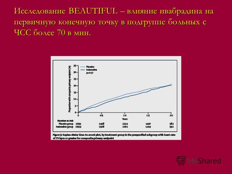 Исследование BEAUTIFUL – влияние ивабрадина на первичную конечную точку в подгруппе больных с ЧСС более 70 в мин.