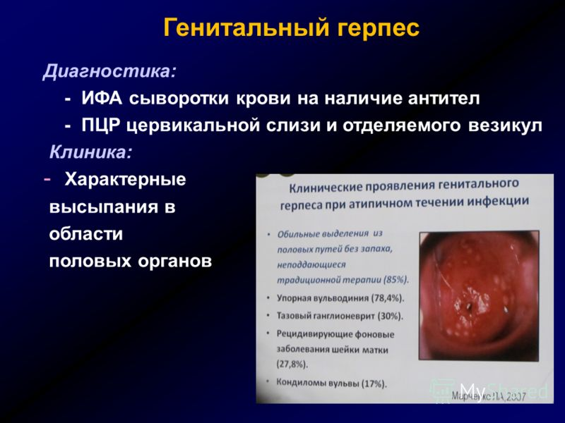 Генитальный герпес Диагностика: - ИФА сыворотки крови на наличие антител - ПЦР цервикальной слизи и отделяемого везикул Клиника: - Характерные высыпания в области половых органов
