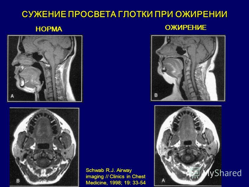 НОРМА ОЖИРЕНИЕ СУЖЕНИЕ ПРОСВЕТА ГЛОТКИ ПРИ ОЖИРЕНИИ Schwab R.J. Airway imaging // Clinics in Chest Medicine, 1998; 19: 33-54