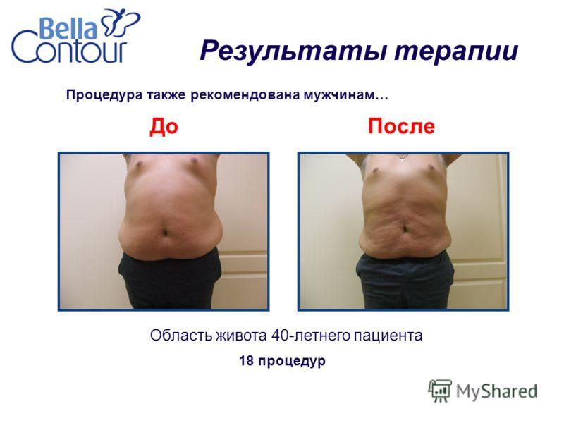 Процедура также рекомендована мужчинам… Область живота 40-летнего пациента ДоПосле 18 процедур Результаты терапии