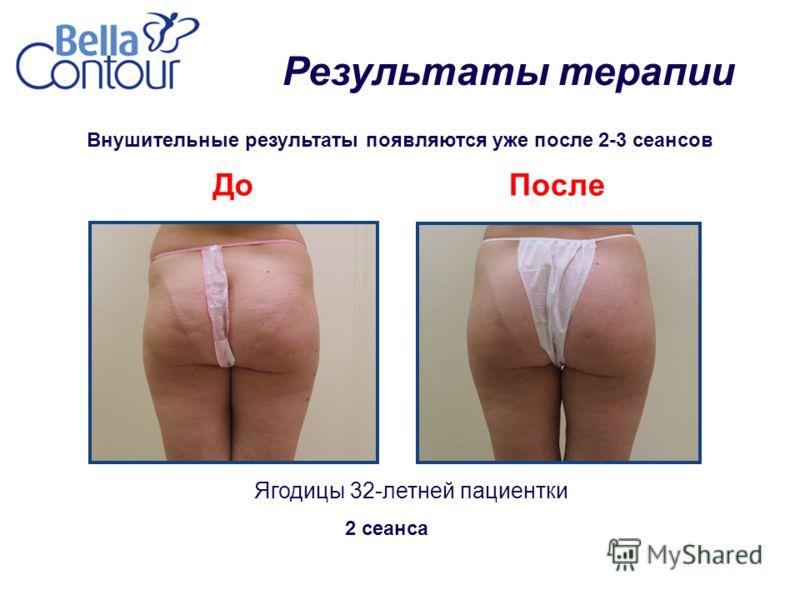 Внушительные результаты появляются уже после 2-3 сеансов Ягодицы 32-летней пациентки ДоПосле 2 сеанса Результаты терапии