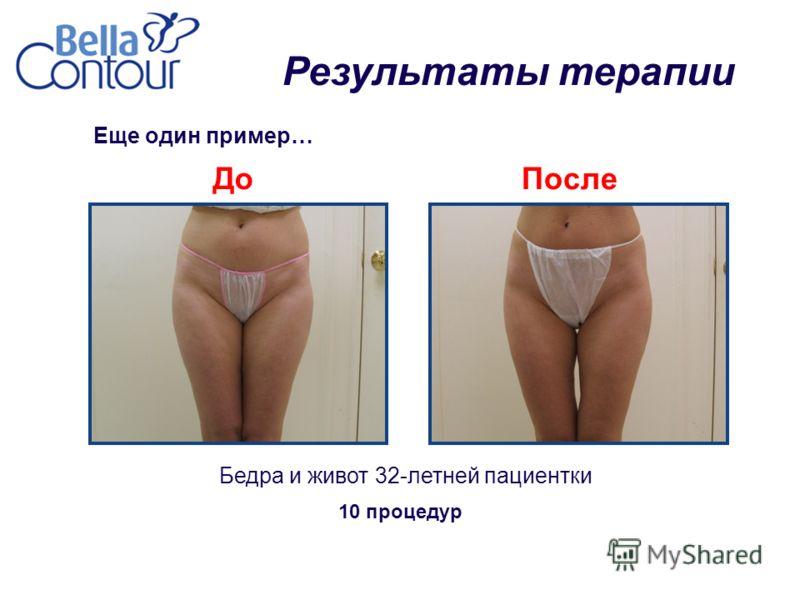 Еще один пример… Бедра и живот 32-летней пациентки ДоПосле 10 процедур Результаты терапии