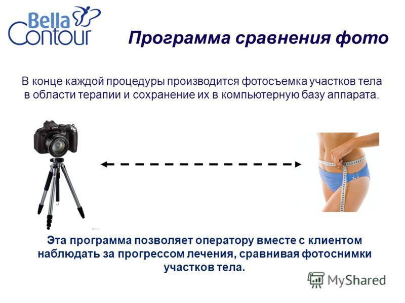 Программа сравнения фото Эта программа позволяет оператору вместе с клиентом наблюдать за прогрессом лечения, сравнивая фотоснимки участков тела. В конце каждой процедуры производится фотосъемка участков тела в области терапии и сохранение их в компь