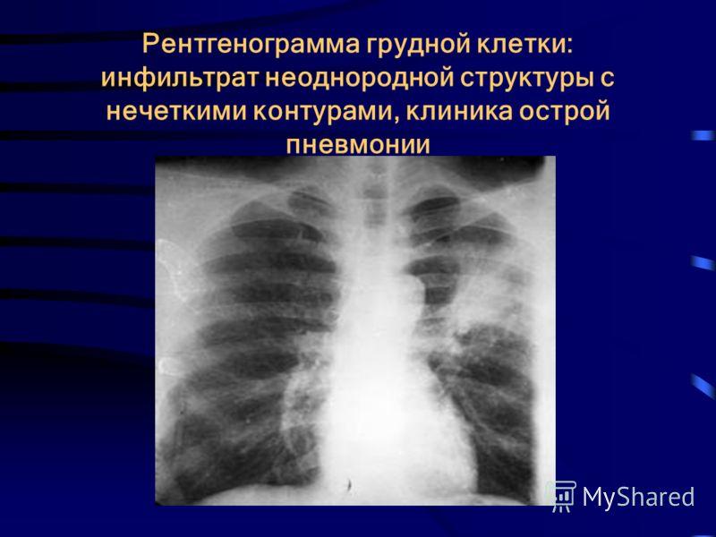 Рентгенограмма грудной клетки: инфильтрат неоднородной структуры с нечеткими контурами, клиника острой пневмонии