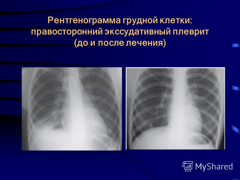 Рентгенограмма грудной клетки: правосторонний экссудативный плеврит (до и после лечения)