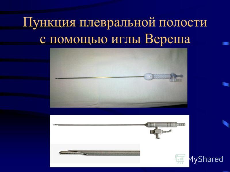 Пункция плевральной полости с помощью иглы Вереша