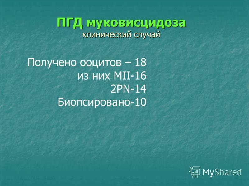 Получено ооцитов – 18 из них MII-16 2PN-14 Биопсировано-10 ПГД муковисцидоза клинический случай