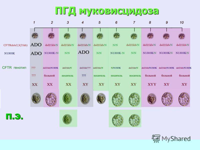 ПГД муковисцидоза П.Э.