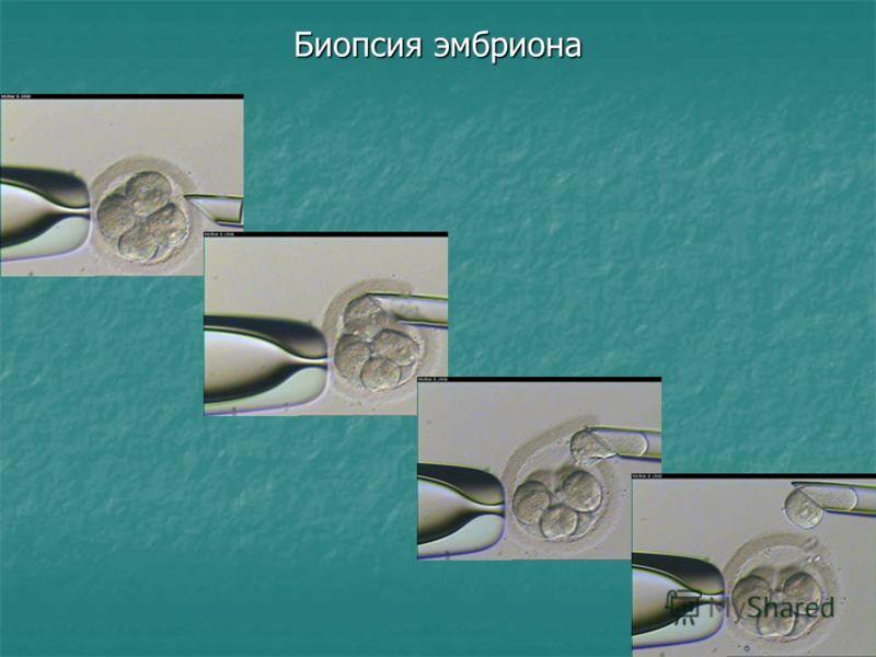 Биопсия эмбриона