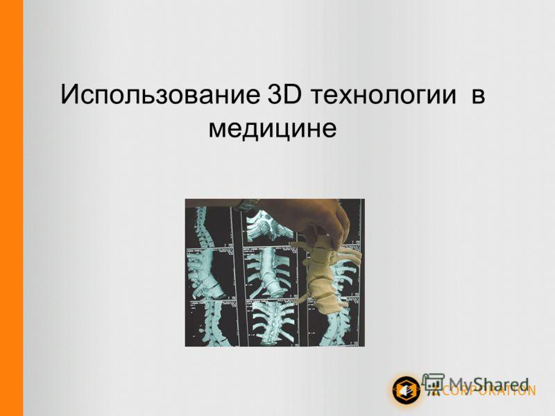 Использование 3D технологии в медицине