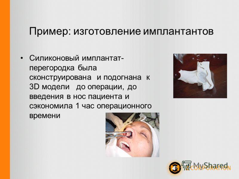 Пример: изготовление имплантантов Силиконовый имплантат- перегородка была сконструирована и подогнана к 3D модели до операции, до введения в нос пациента и сэкономила 1 час операционного времени