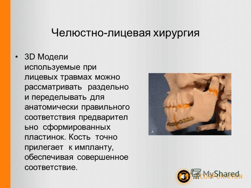 Челюстно-лицевая хирургия 3D Модели используемые при лицевых травмах можно рассматривать раздельно и переделывать для анатомически правильного соответствия предварител ьно сформированных пластинок. Кость точно прилегает к импланту, обеспечивая соверш