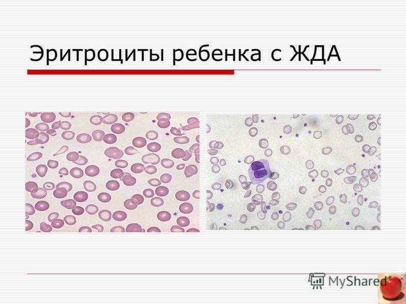 Эритроциты ребенка с ЖДА