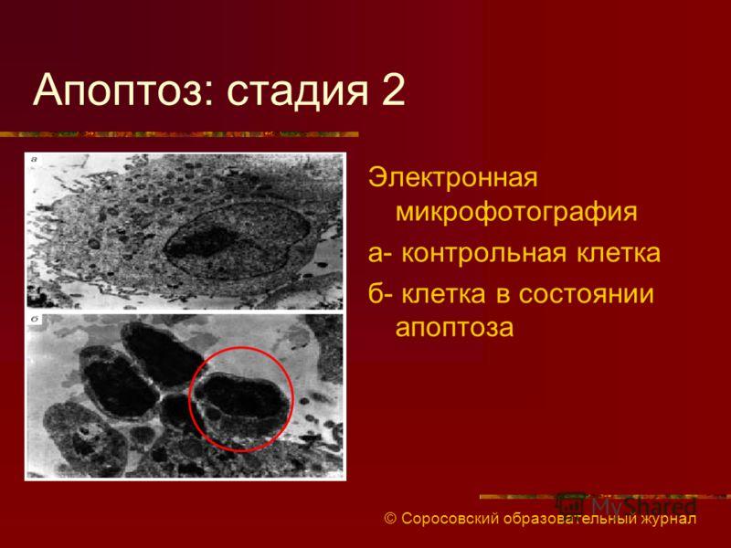 Апоптоз: стадия 2 Электронная микрофотография а- контрольная клетка б- клетка в состоянии апоптоза © Соросовский образовательный журнал