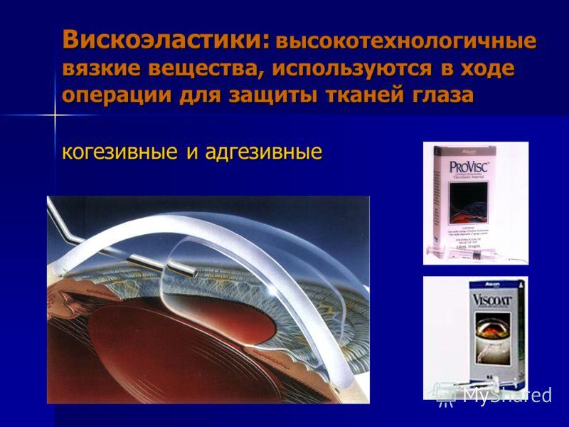 Вискоэластики: высокотехнологичные вязкие вещества, используются в ходе операции для защиты тканей глаза когезивные и адгезивные