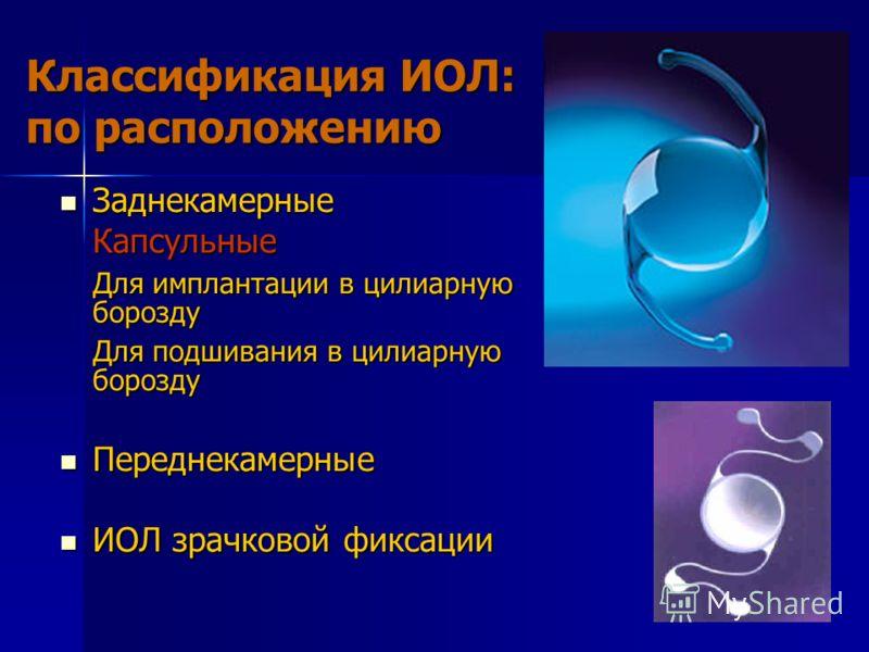 Классификация ИОЛ: по расположению Заднекамерные ЗаднекамерныеКапсульные Для имплантации в цилиарную борозду Для подшивания в цилиарную борозду Переднекамерные Переднекамерные ИОЛ зрачковой фиксации ИОЛ зрачковой фиксации