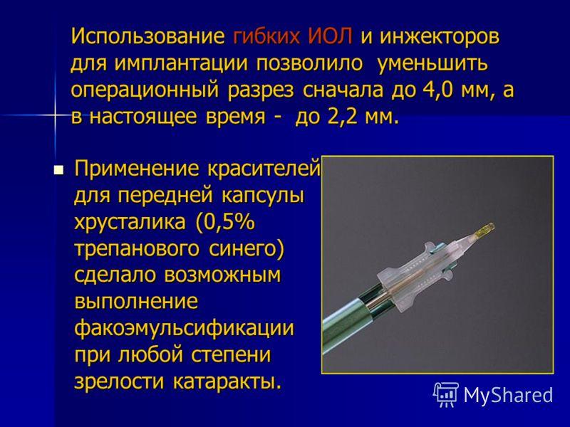 Использование гибких ИОЛ и инжекторов для имплантации позволило уменьшить операционный разрез сначала до 4,0 мм, а в настоящее время - до 2,2 мм. Применение красителей для передней капсулы хрусталика (0,5% трепанового синего) сделало возможным выполн