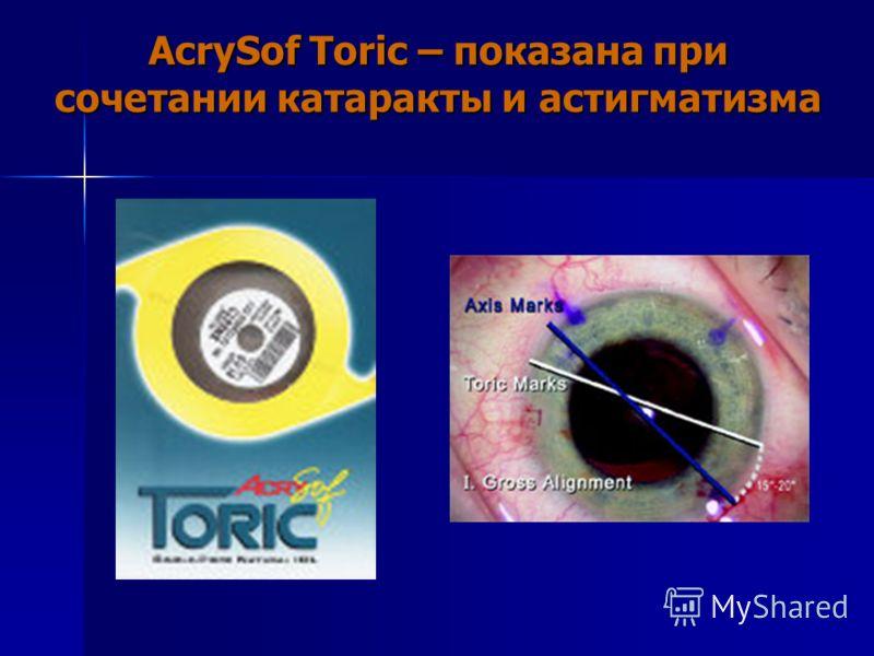 AcrySof Toric – показана при сочетании катаракты и астигматизма
