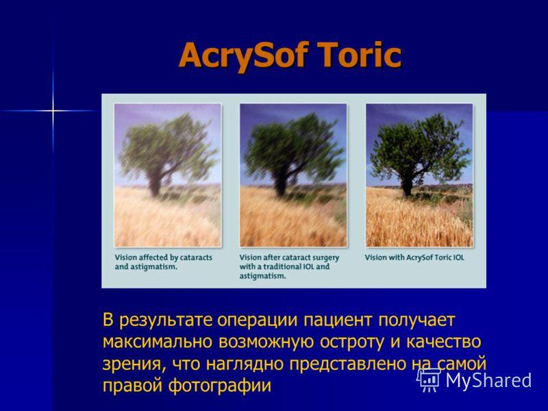 AcrySof Toric В результате операции пациент получает максимально возможную остроту и качество зрения, что наглядно представлено на самой правой фотографии