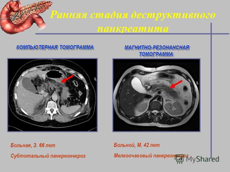 Ранняя стадия деструктивного панкреатита Больная, З. 66 лет Субтотальный панкреонекроз КОМПЬЮТЕРНАЯ ТОМОГРАММА МАГНИТНО-РЕЗОНАНСНАЯ ТОМОГРАММА Больной, М. 42 лет Мелкоочаговый панкреонекроз