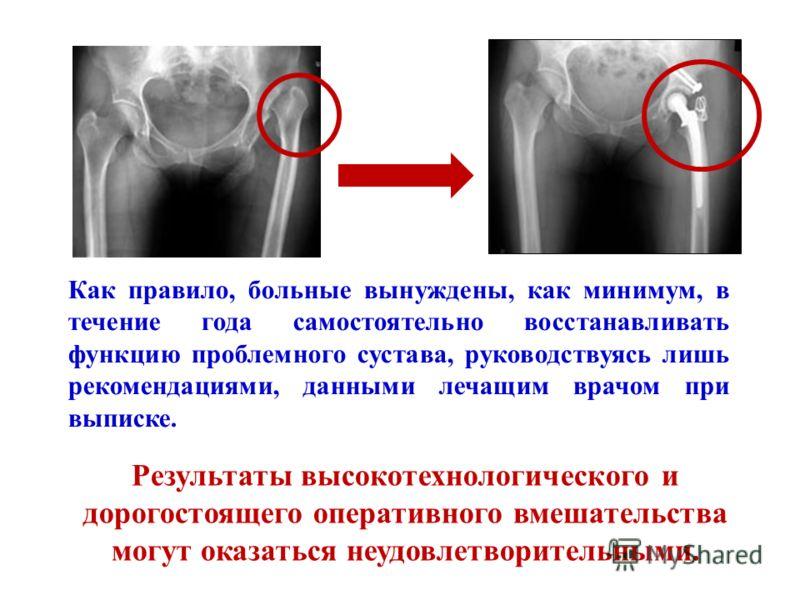 Как правило, больные вынуждены, как минимум, в течение года самостоятельно восстанавливать функцию проблемного сустава, руководствуясь лишь рекомендациями, данными лечащим врачом при выписке. Результаты высокотехнологического и дорогостоящего операти