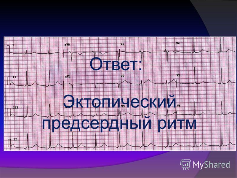 """Презентация на тему: """"КОНКУРС ЭКГ. Ответ: Наджелудочковая ..."""