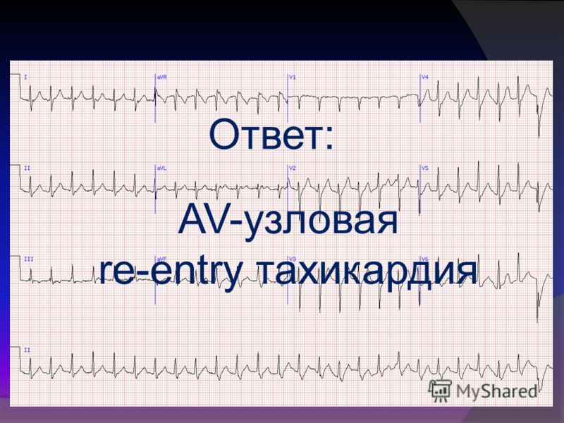 Ответ: AV-узловая re-entry тахикардия