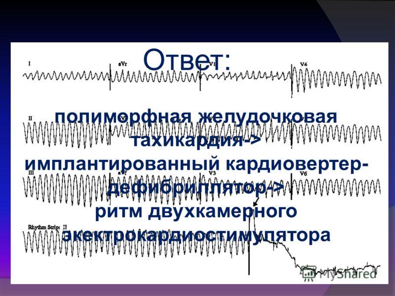 Ответ: полиморфная желудочковая тахикардия-> имплантированный кардиовертер- дефибриллятор-> ритм двухкамерного экектрокардиостимулятора