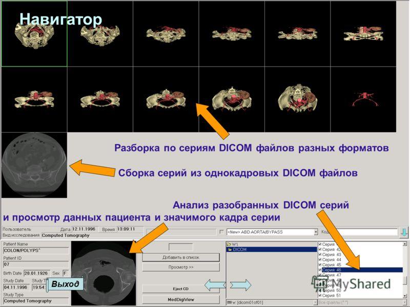 Разборка по сериям DICOM файлов разных форматов Выход Сборка серий из однокадровых DICOM файлов Навигатор Анализ разобранных DICOM серий и просмотр данных пациента и значимого кадра серии