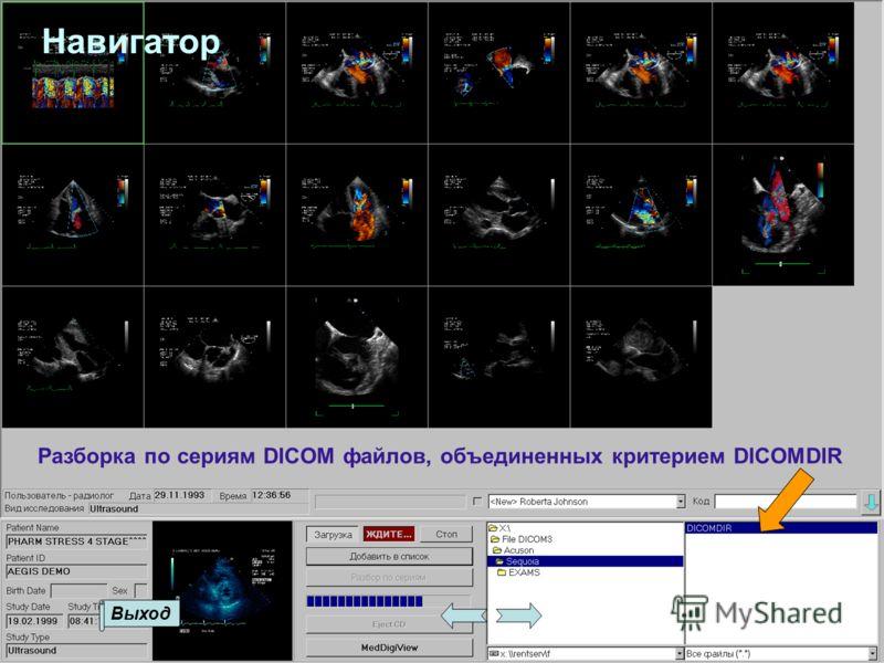 Разборка по сериям DICOM файлов, объединенных критерием DICOMDIR Выход Навигатор