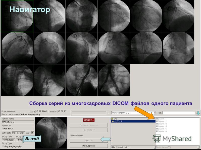 Сборка серий из многокадровых DICOM файлов одного пациента Выход Навигатор