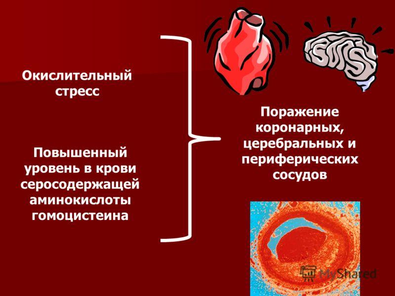 Окислительный стресс Повышенный уровень в крови серосодержащей аминокислоты гомоцистеина Поражение коронарных, церебральных и периферических сосудов