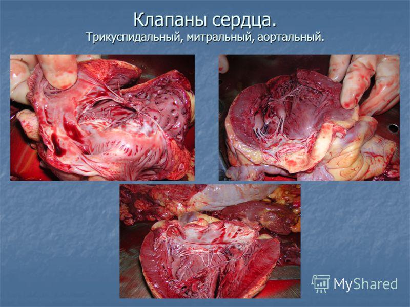 Клапаны сердца. Трикуспидальный, митральный, аортальный.