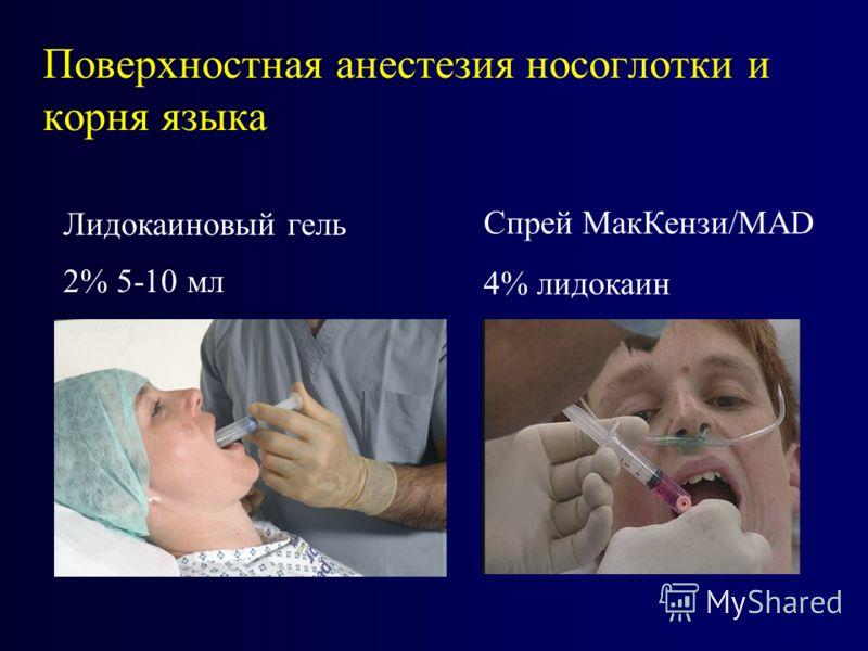 Поверхностная анестезия носоглотки и корня языка Лидокаиновый гель 2% 5-10 мл Спрей МакКензи/MAD 4% лидокаин
