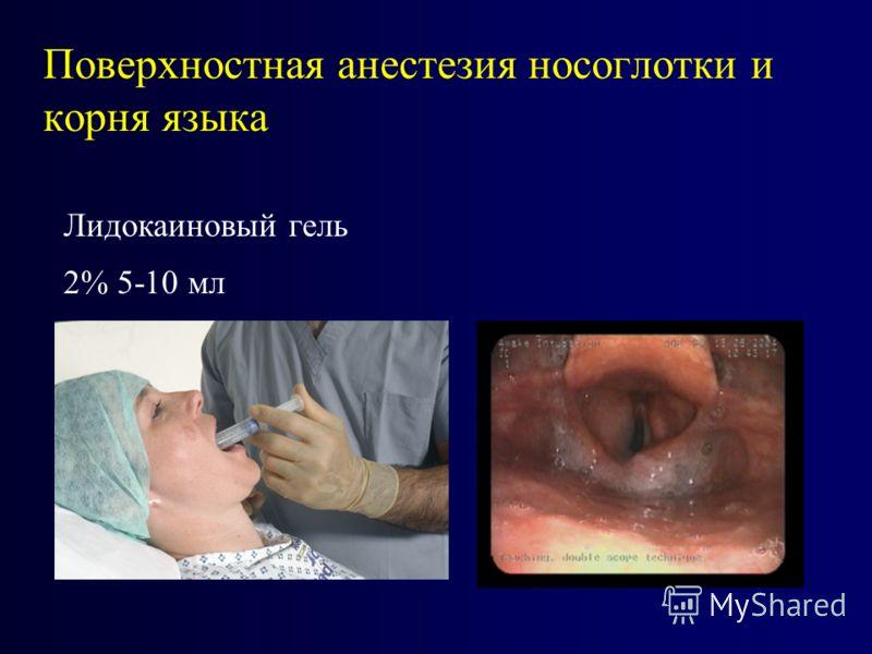 Поверхностная анестезия носоглотки и корня языка Лидокаиновый гель 2% 5-10 мл
