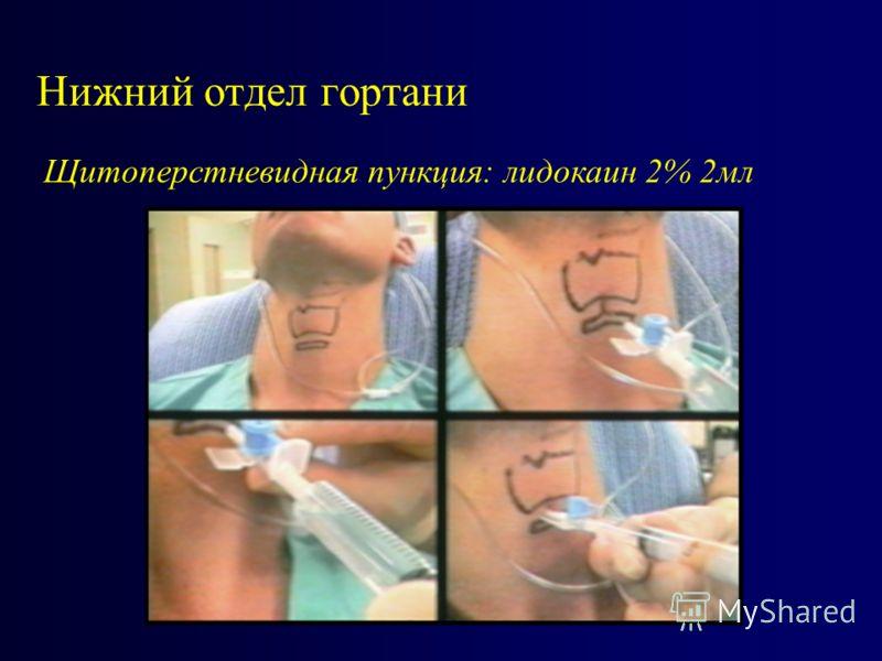Нижний отдел гортани Щитоперстневидная пункция: лидокаин 2% 2мл