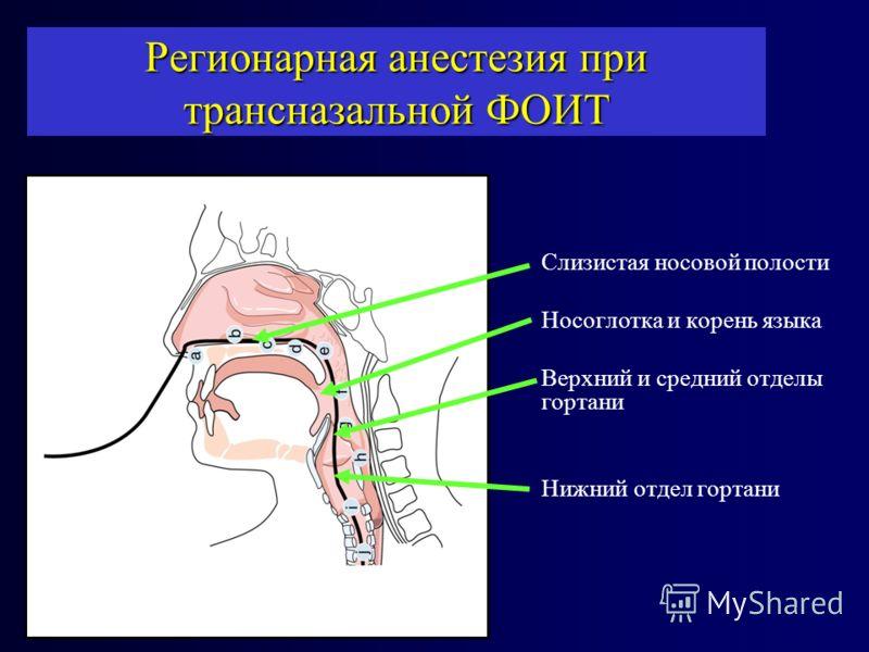 Слизистая носовой полости Носоглотка и корень языка Верхний и средний отделы гортани Нижний отдел гортани Регионарная анестезия при трансназальной ФОИТ