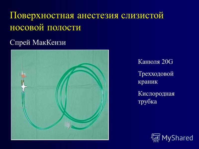 Поверхностная анестезия слизистой носовой полости Спрей МакКензи Канюля 20G Трехходовой краник Кислородная трубка