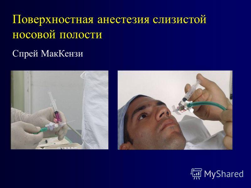 Поверхностная анестезия слизистой носовой полости Спрей МакКензи