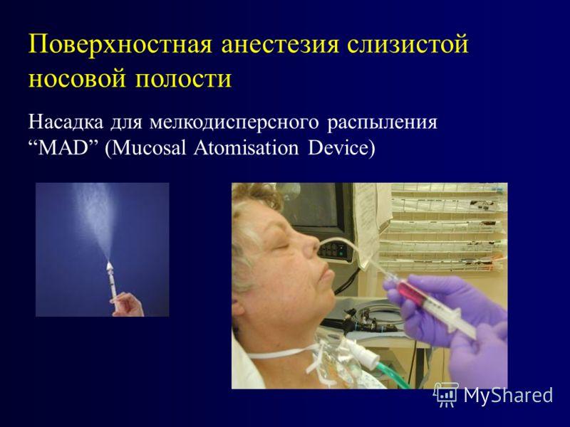 Поверхностная анестезия слизистой носовой полости Насадка для мелкодисперсного распыленияМAD (Mucosal Atomisation Device)