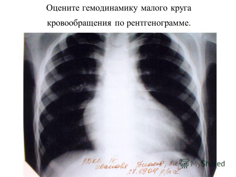 Оцените гемодинамику малого круга кровообращения по рентгенограмме.