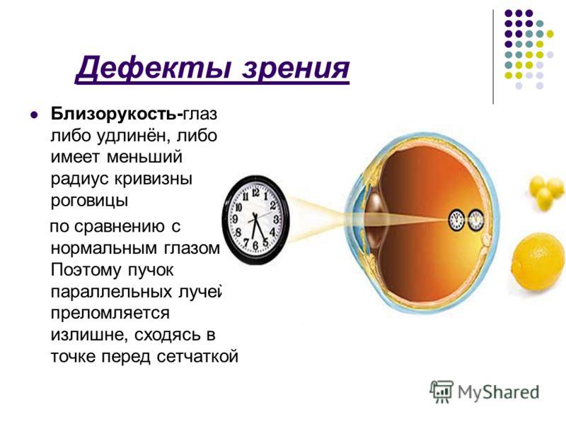 Дефекты зрения Близорукость-глаз либо удлинён, либо имеет меньший радиус кривизны роговицы по сравнению с нормальным глазом. Поэтому пучок параллельных лучей преломляется излишне, сходясь в точке перед сетчаткой