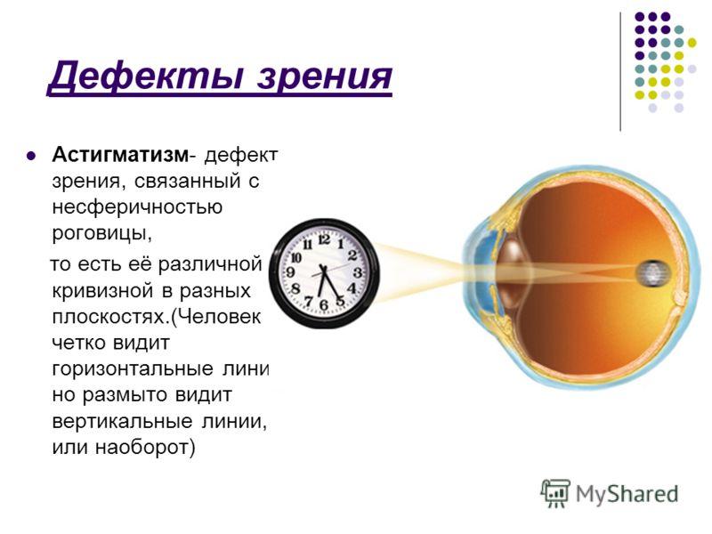 Дефекты зрения Астигматизм- дефект зрения, связанный с несферичностью роговицы, то есть её различной кривизной в разных плоскостях.(Человек четко видит горизонтальные линии, но размыто видит вертикальные линии, или наоборот)