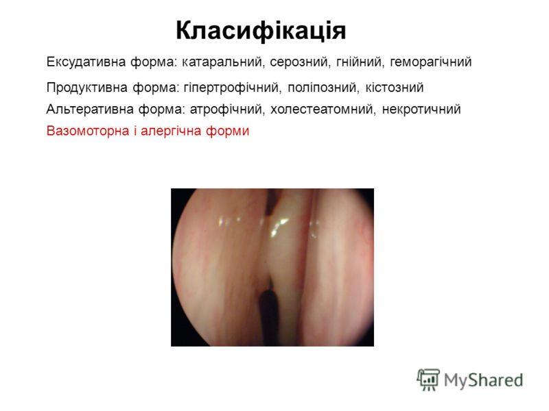 Класифікація Ексудативна форма: катаральний, серозний, гнійний, геморагічний Продуктивна форма: гіпертрофічний, поліпозний, кістозний Альтеративна форма: атрофічний, холестеатомний, некротичний Вазомоторна і алергічна форми